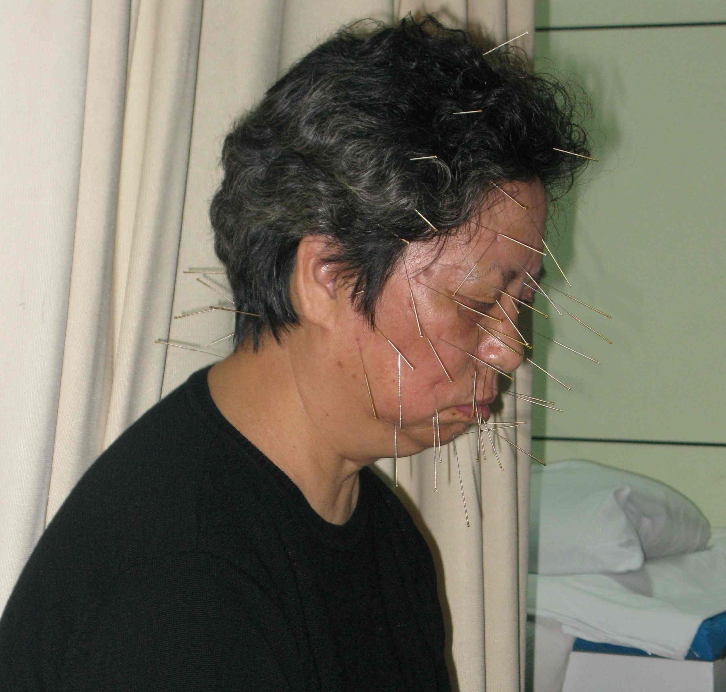 akupunktura1
